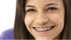 Orthodontist Eindhoven