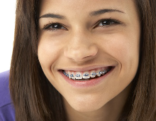Orthodontist in Eindhoven