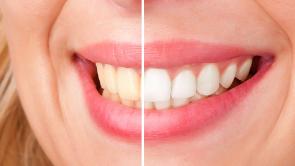 Tanden bleken Eindhoven